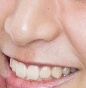 山本美月鼻毛(拡大)